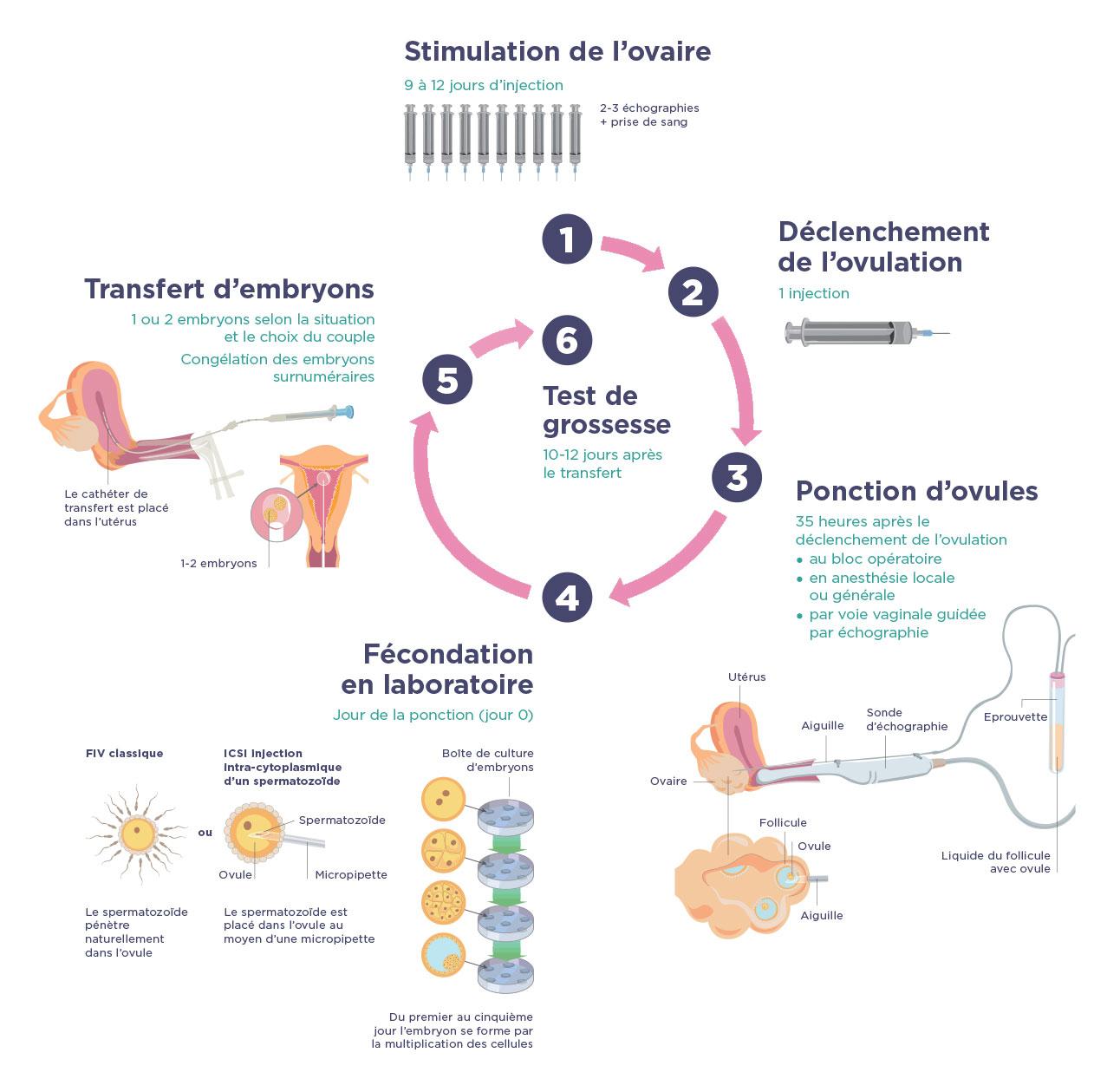 Déroulement d'une fécondation in vitro